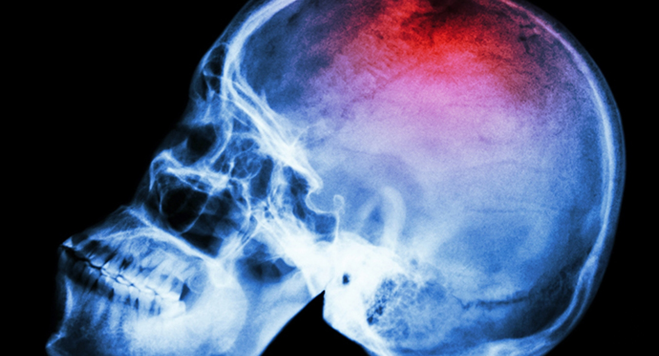 head injuries in playgrounds